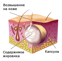 Жировик