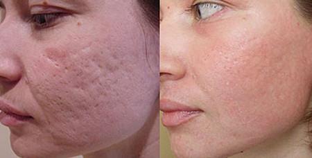 Лечение рубцов: до и после