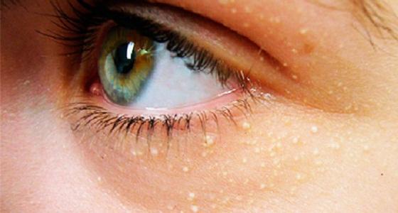 Жировики под глазом