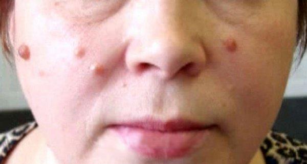Бородавки на лице