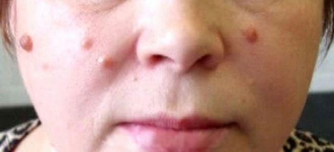 Причины и лечение бородавок на лице