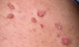 Папилломы: причины появления на теле и методы лечения