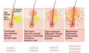 Виды прыщей на лице и теле: отличия и причины возникновения