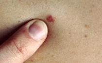 Причины появления и лечение красных родинок на коже
