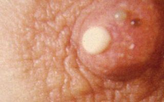 Причины возникновения и лечение папиллом на сосках