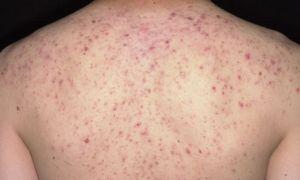 Причины и лечение прыщей на спине