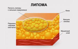 Причины и методы лечения жировика на теле