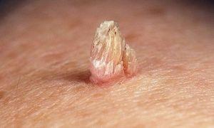 Папилломы: причины появления, традиционное лечение, профилактика