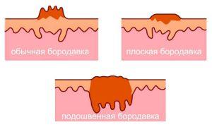 Способы лечения бородавки на пальце